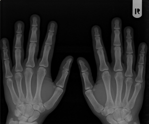 Carpal Tunnel Syndrom Pain